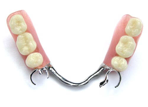 chrome removable partial dentures